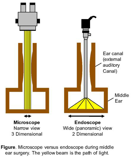 Endoscopic vs. microscopic middle ear surgery diagram