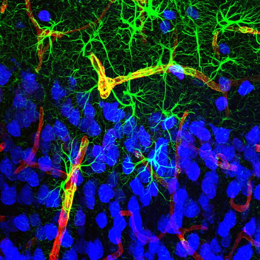 Research image showing a complex of astrocytes-neurons-blood vessels in the auditory cortex of mouse brain.